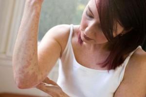эритразма лечение