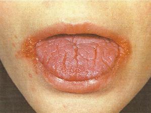 кандидоз кожи симптомы