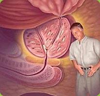Признаки и симптомы аденомы предстательной железы