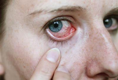Витаминные капли для глаз от усталости и покраснения