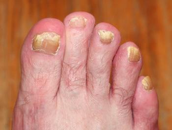 Грибок ногтей на ногах. Симптомы, лечение