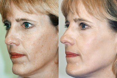Фотоомоложение: до и после