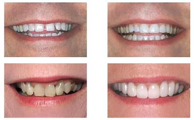 Что такое виниры и как их устанавливают на зубы?