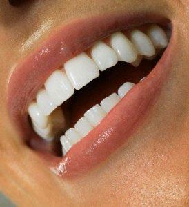 белоснежная улыбка без зубного камня