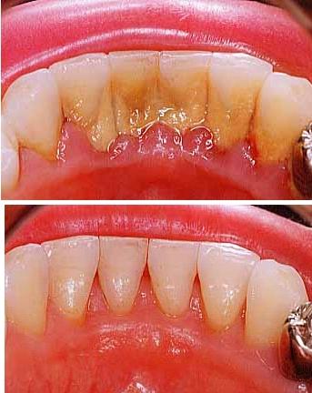 зубной камень на зубах до и после чистки