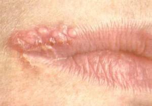 герпес в уголке губ способы лечения