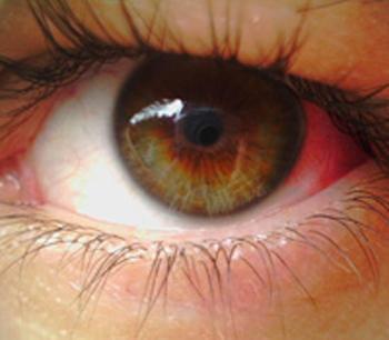Почему лопаются капилляры в глазах? Причины и профилактика