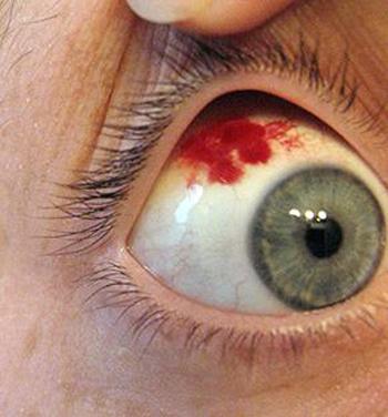 Почему в глазах лопаются сосуды