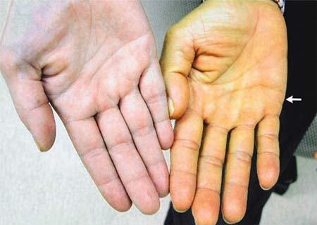 Желтуха: симптомы, причины и лечение
