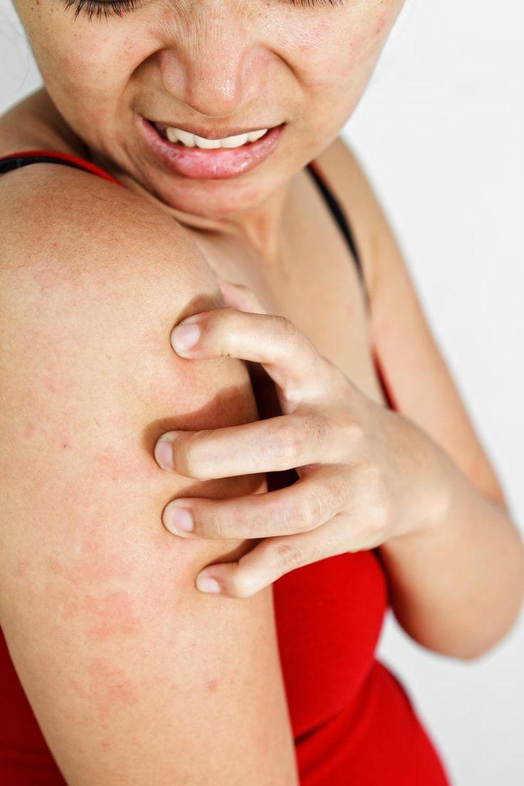 78Как лечить скарлатину у взрослых народными средствами