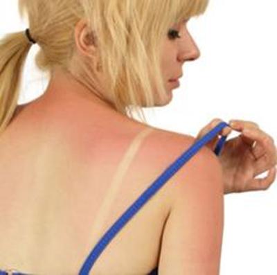 Чем мазаться если сгорел на солнце