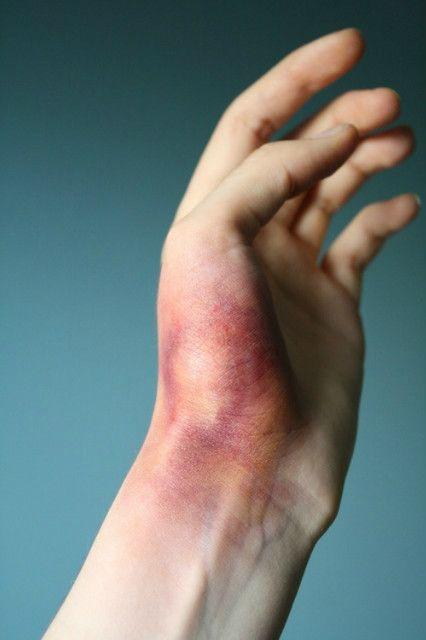 Что делать если опухла рука от удара?