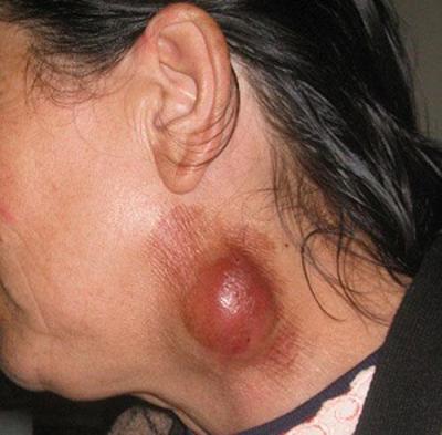 Туляремия – симптомы, признаки, лечение и профилактика