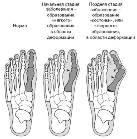 Эффективные народные средства от косточки на ноге