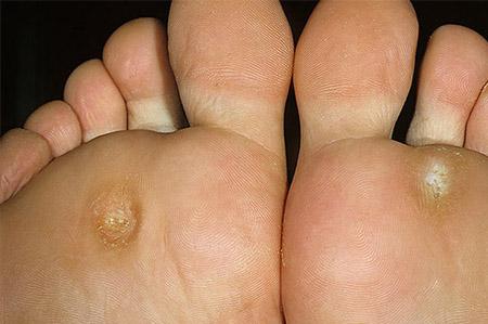 Лечить грибок на пальце