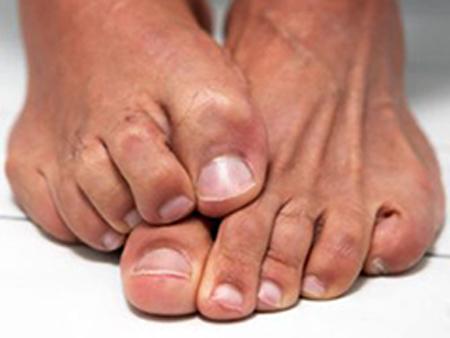 Тайланд средство от грибка ногтей на ногах